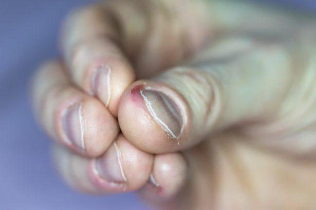 application pour arreter de se ronger les ongles