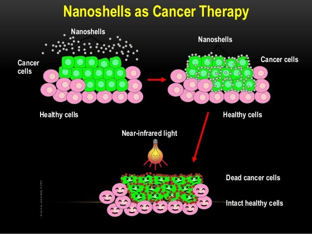 application of nanoparticles in cancer treatment